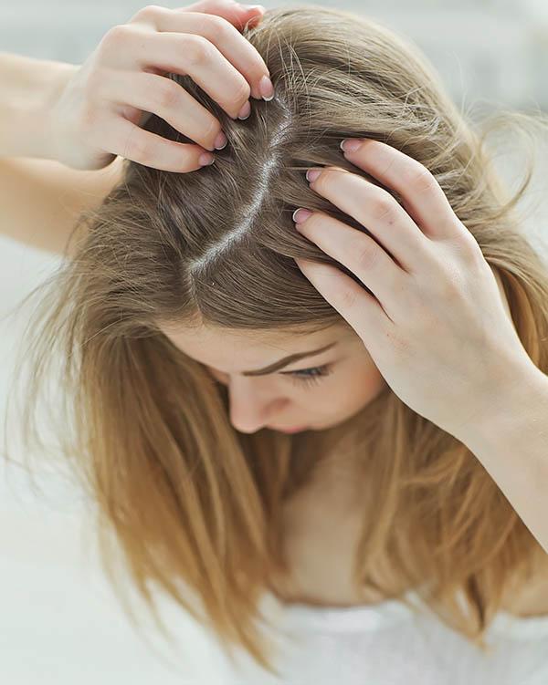 wypadanie włosów na cyklu